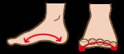 偏平足、足のアーチ
