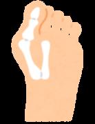 外反母趾イメージ