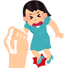 外反母趾のイメージ